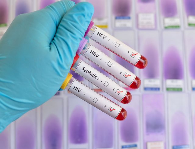 hcv-healthy-sexualhealth-sexually-transmitted-disease-stds